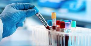 Uma mudança recente na legislação pode agilizar os testes de DNA e acelerar os processos de investigação de paternidade