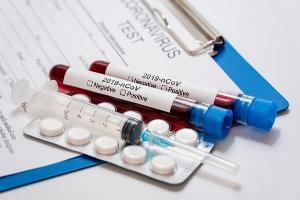 Além dos EUA, a vacina também terá papel importante na vacinação na África do Sul e em outros países africanos, que estão para trás na distribuição das doses no mundo