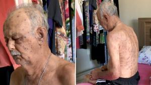 Aylton Frigerio, de 74 anos, foi atacado em uma propriedade rural de Nova Venécia, por quase 30 minutos até ser socorrido. A vítima ficou com marcas no corpo todo
