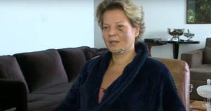 A deputada sofreu fraturas e hematomas e relatou ter acordado, ensanguentada, domingo retrasado (18) em seu apartamento funcional, em Brasília