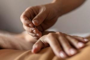 Para uma boa hora, a acupuntura se mostra como uma opção de tratamento natural, sem contraindicações e seguro quando feito com profissional especializado e experiente